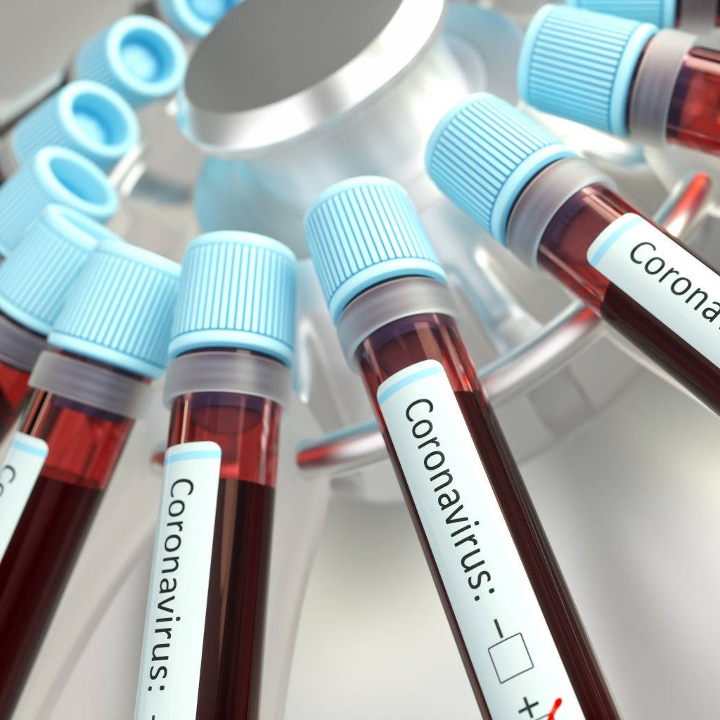 covid-19 novel coronavirus blood samples